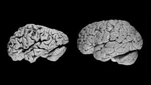 Brains from Alzheimer's patient (left) and normal patient (right)